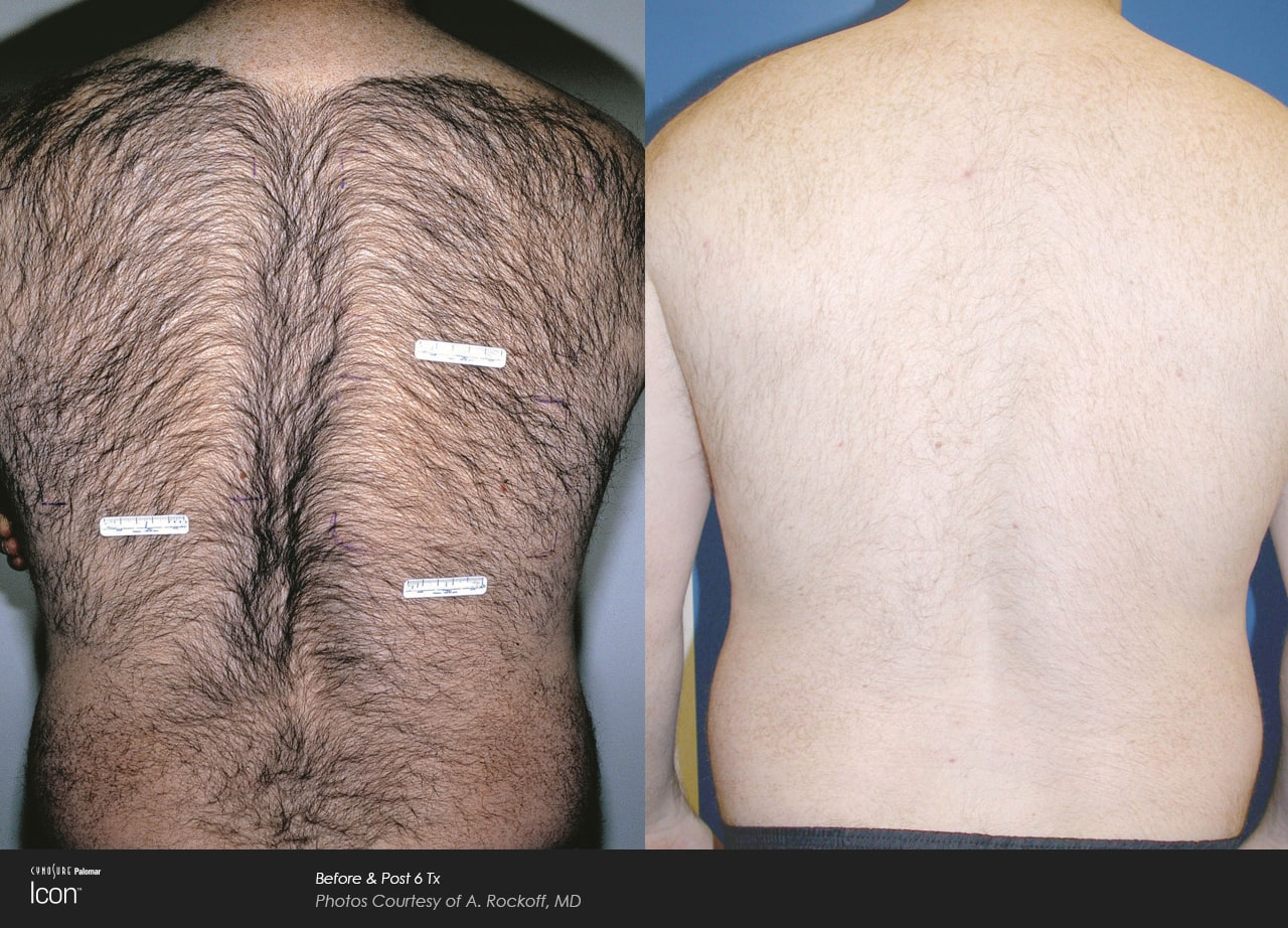 Hair-Removal-Before-26-After-Photo-1