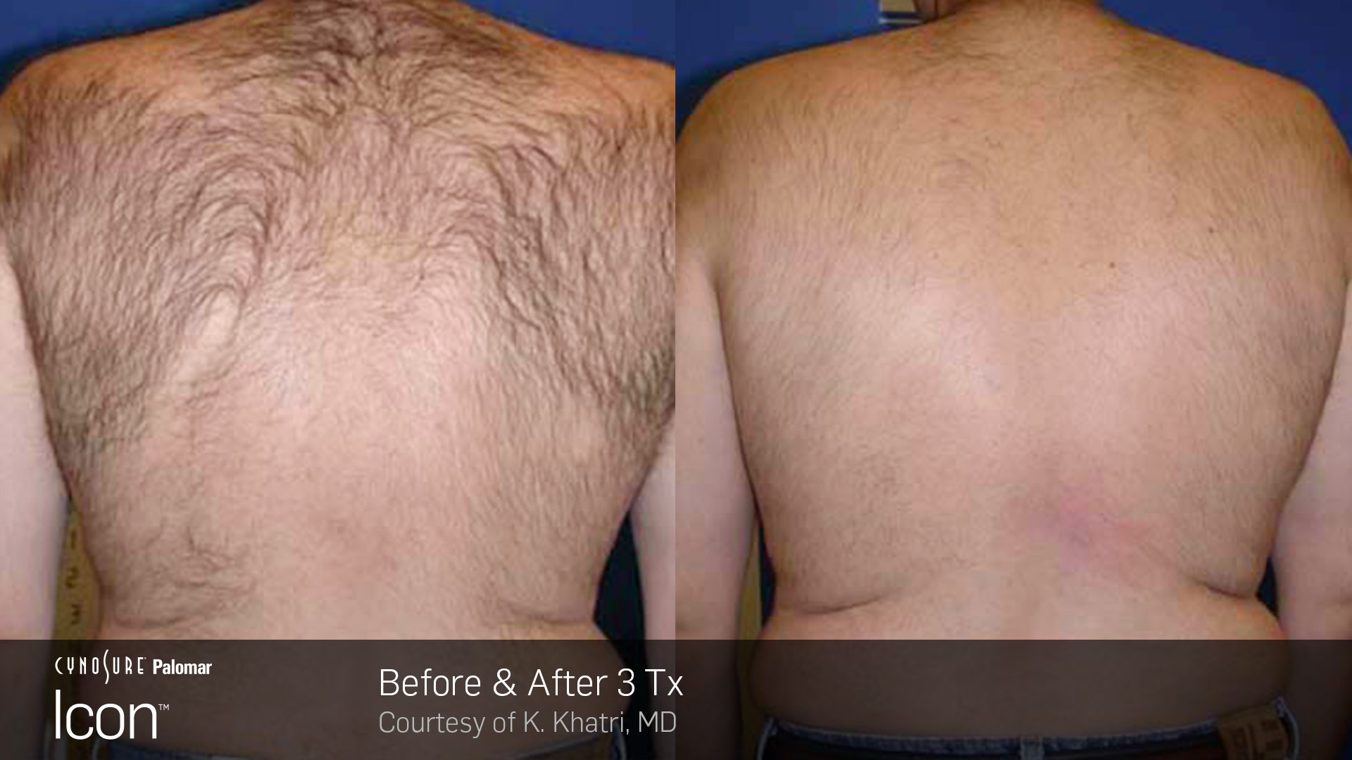 Hair-Removal-Before-26-After-Photo-5