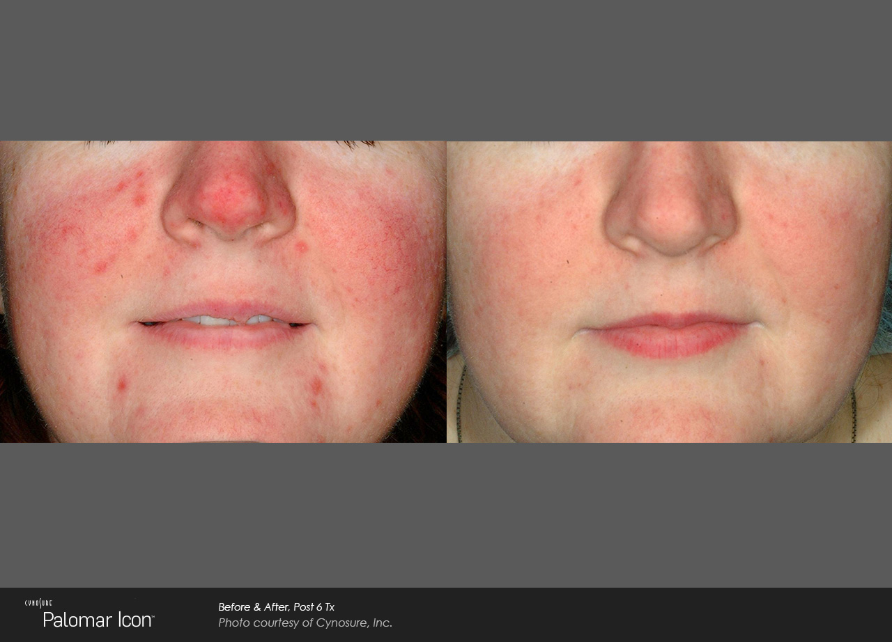 Skin-Revitalization-Before-26-After-Photo-6